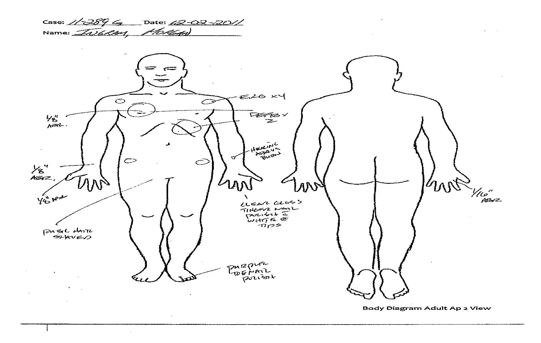 Body Diagram Copy Truth For Morgan