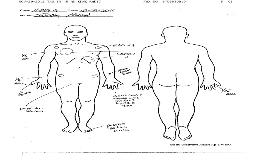 body diagram  «